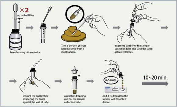Diagnosis Giardia lamblia