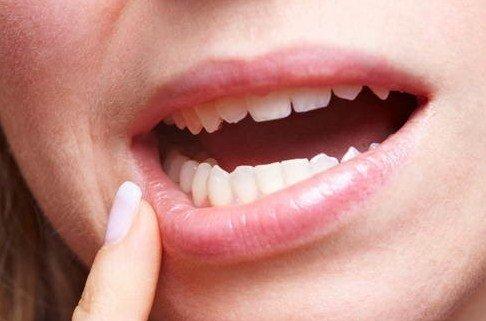 Bagaimana Gigi Berlubang Bisa Menyebabkan Infeksi Pembuluh Darah