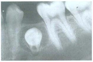 Kista Dentigerous. Lesi radiolusen melibatkan mahkota premolar mandibula yang tidak erupsi