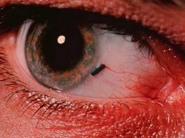 benda asing di mata