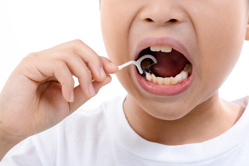 Bagaimana Cara Merawat Gigi Valplast Diskusi Kesehatan Gigi