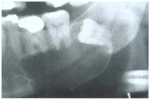 Kista Dentigerous. Tipe lateral menunjukan kista yang besar sepanjang akar mesial gigi yang tidak erupsi