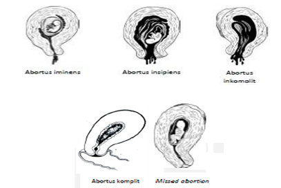 Jenis abortus