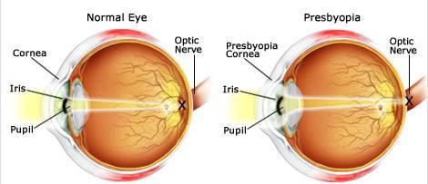 Presbiopi adalah kelainan pada mata yang menyebabkan hilangnya kemampuan mata untuk melihat objek dalam jarak dekat secara bertahap.