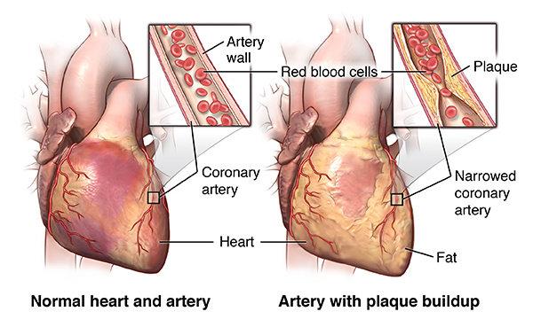 Serangan Jantung atau Infark miokard