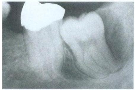 Kista Dentigerous Sirkumferensial