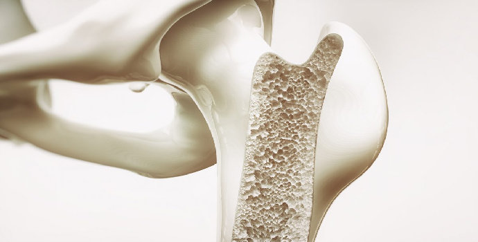 Bagaimana hubungan antara pemenuhan nutrisi dengan pembentukan tulang ?