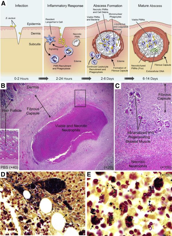 Patogenisitas Staphylococcus aureus