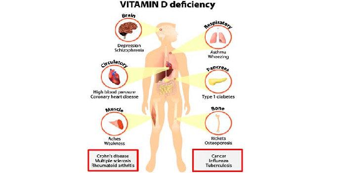 Apa saja gejala dan tanda kekurangan vitamin D ?