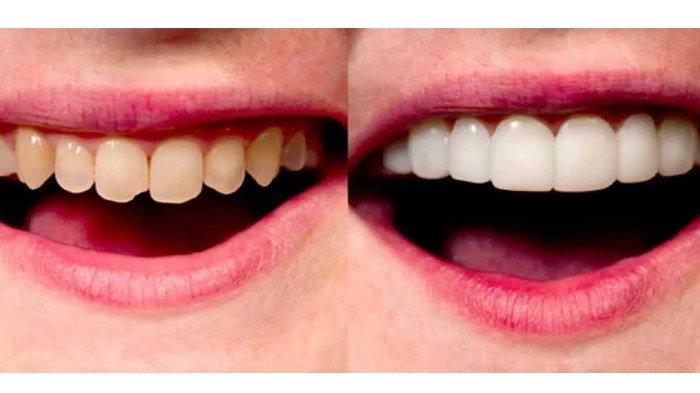 Harga perawatan untuk bleaching gigi variatif tergantung jenis metode yang digunakan  serta hasil seperti apa yang diinginkan. Berapa biaya perawatan untuk ... 700cc7f16c