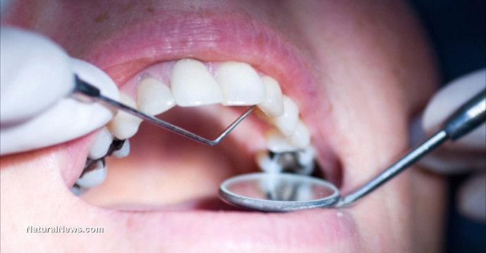 Penyakit gigi