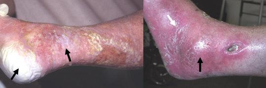 Kiri : maserasi kulit, kanan : luka terinfeksi. Tampak selulitis di sekitar luka.