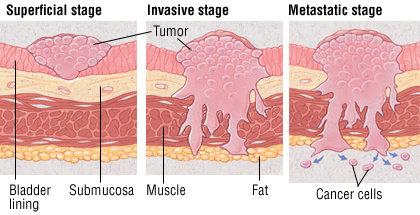 Kanker Kandung kemih