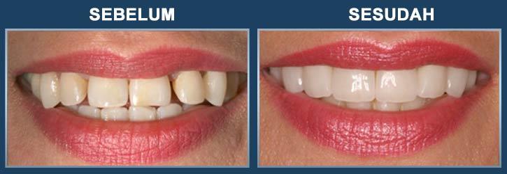 apa itu veneer gigi ancora store u2022 rh ancora store apa itu veneering gigi apakah itu veneer gigi
