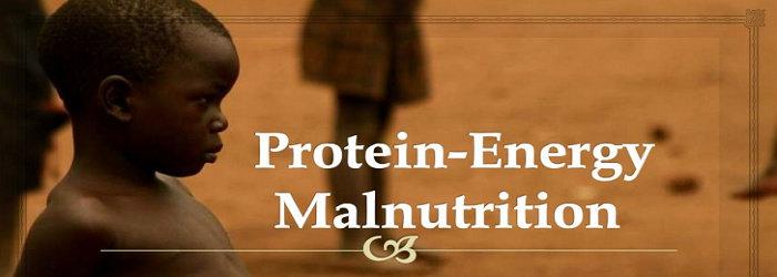 Malnutrisi  Energi Protein