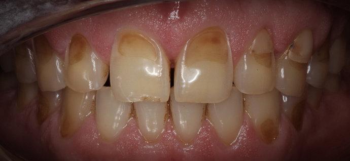 erosi gigi