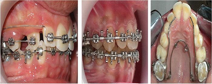 Perawatan Ortodontik korektif