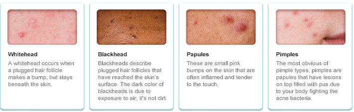 Tipe Akne vulgaris