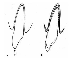 Pergerakan vertikal : ekstrusi