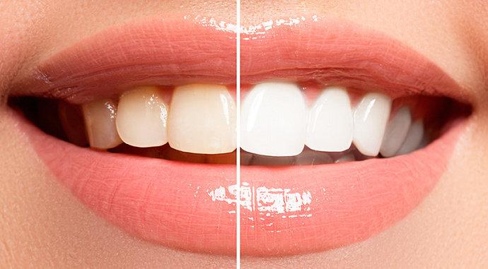 Estetika gigi