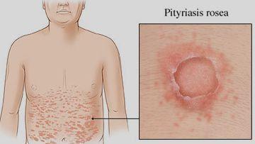 Pitiriasis rosea