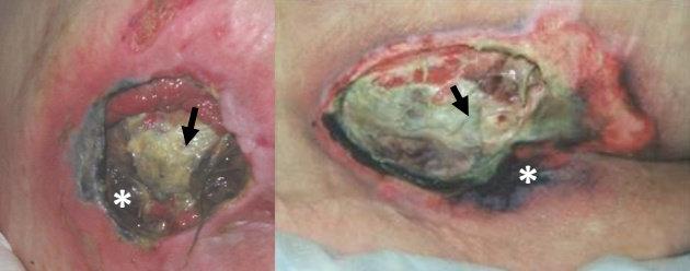 Dasar luka tertutup jaringan nekrotik & slough