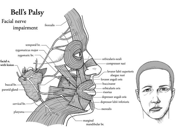 Bells'palsy