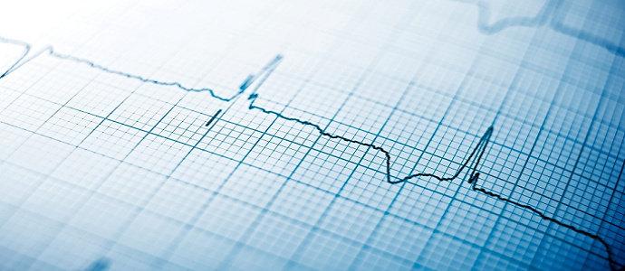 Elektrokardiograf