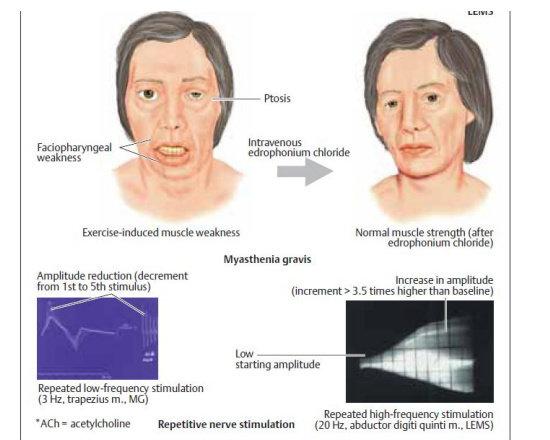 Tes Edrophonium dan EMG pada myasthenia gravis