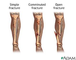 Fraktur atau patah tulang