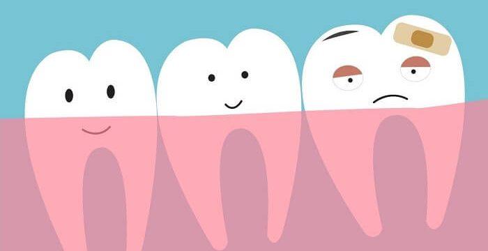 1_illustration-of-wisom-tooth-700x360