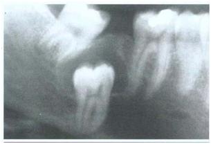 Kista Dentigerous. Tipe sentral menunjukan mahkota terproyeksi kedalam rongga kista