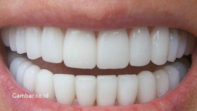 ingin-gigi-tetap-sehat-hindari-makanan-dan-minuman-berikut-of-gambar-gigi