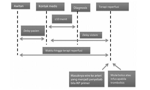 Komponen delay dalam STEMI dan interval ideal untuk intervensi