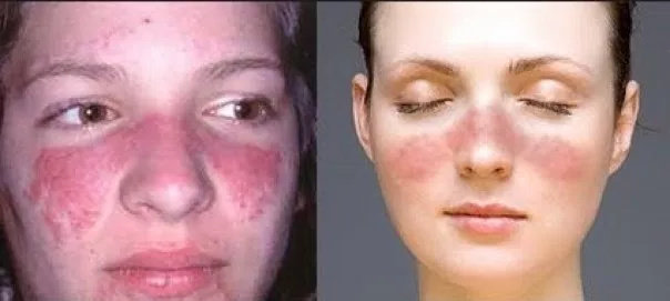 Apa Yang Dimaksud Dengan Penyakit Lupus Ilmu Kedokteran Dictio