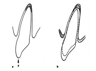 Pergerakan vertikal : intrusi