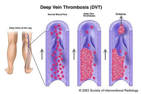 Trombosis vena Dalam