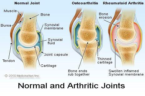 Radang Sendi atau Artritis Reumatoid