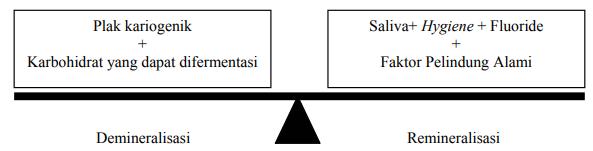 Faktor-faktor etiologi karies gigi