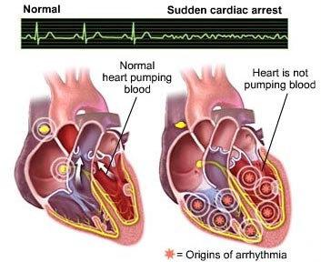 Henti Jantung atau Cardiorespiratory Arrest