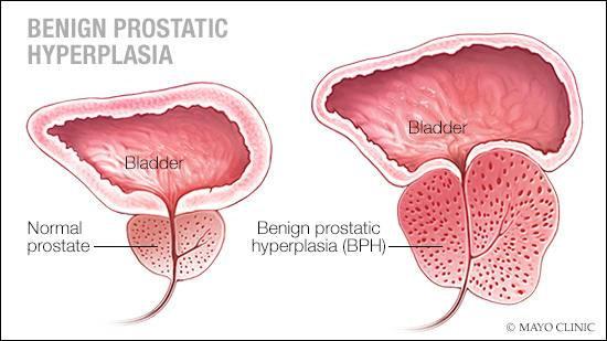 hipertrofi prostat jinak