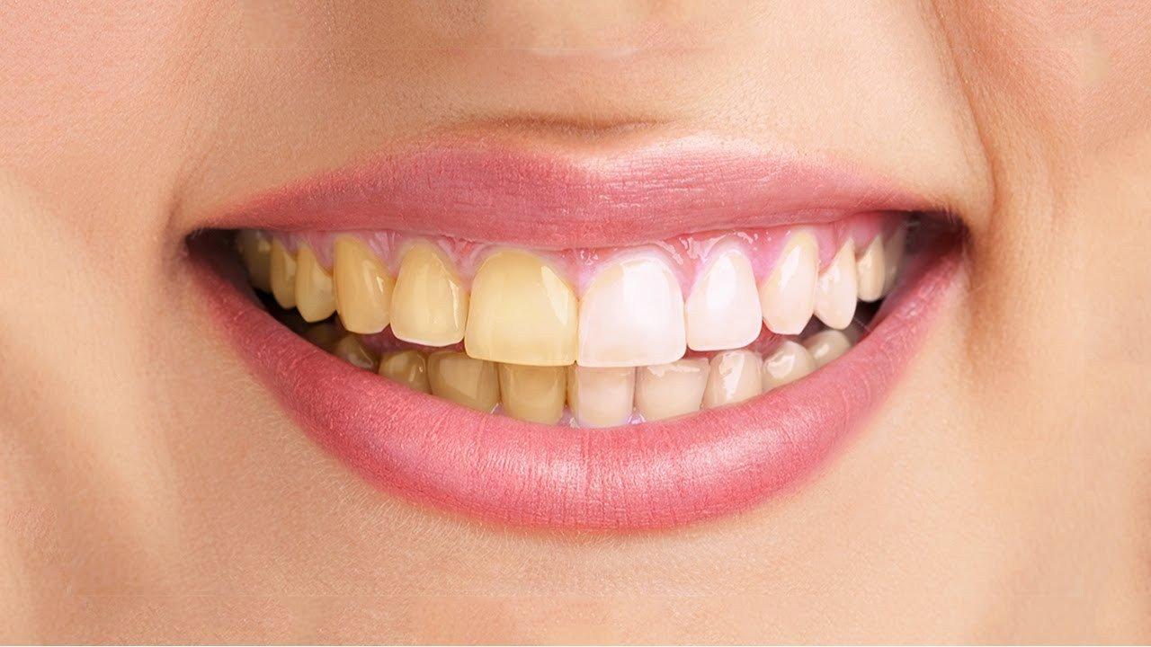 Adakah Tips Memutihkan Gigi Yang Dapat Di Coba Di Rumah Diskusi