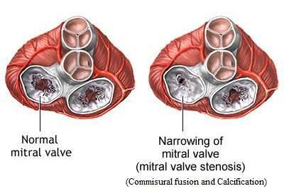 Stenosis mitral (MS)