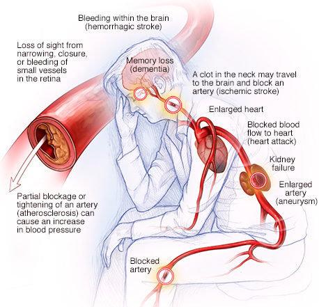 Komplikasi hipertensi pada otak