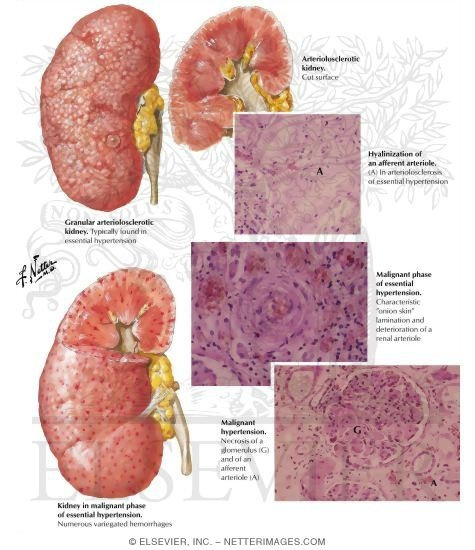 ginjal hiperteni