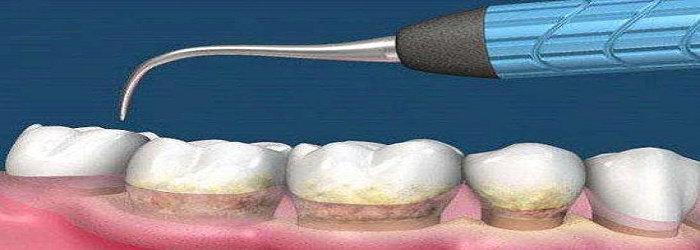 Apa Yang Dimaksud Dengan Karang Gigi Atau Kalkulus Gigi Ilmu