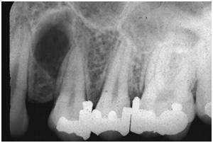 Gambaran radiografi periapical scar