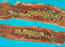 Usus Sapi Yang Terinfeksi Salmonella