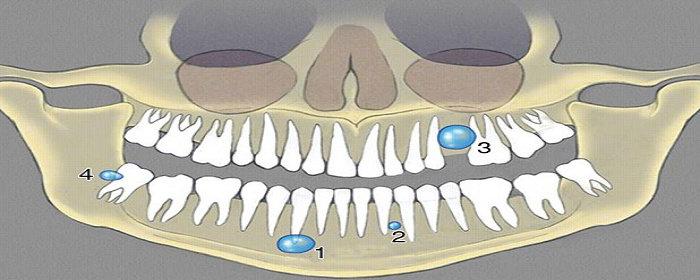 kista odontogenik