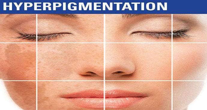 Hiperpigmentasi pasca inflamasi